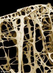 Excessive intake of fluoride can cause a variety of health problems including osteoporosis (affected bone, pictured)